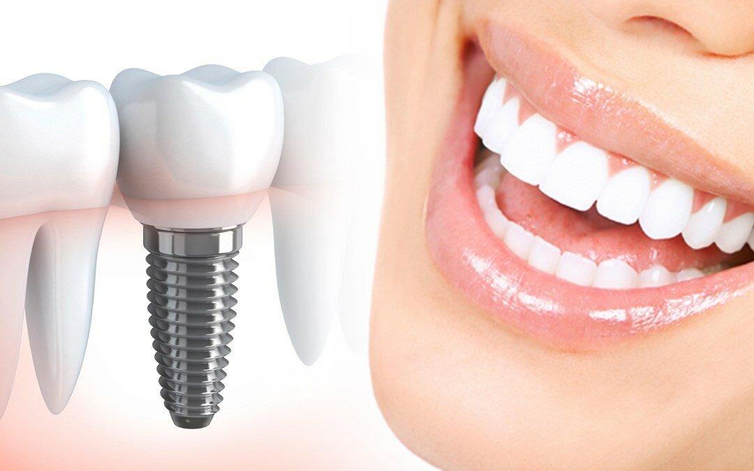 Имплантация зубов: преимущества, недостатки, риски - Статьи